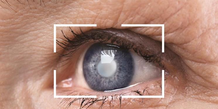 یافته جدید محققان رویان و دانشگاه درسدن آلمان، کروکتین زعفران بیماری لکه زرد چشم را متوقف می نماید