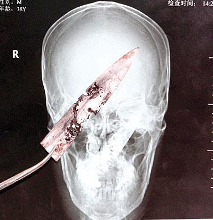 یک چاقو بعد از 4 سال از سر مردی خارج شد