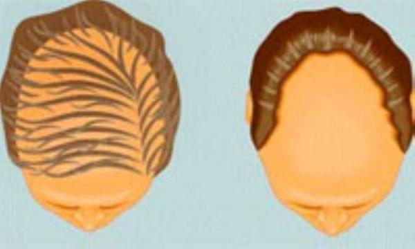 برترین کاندیدهای پیوند مو